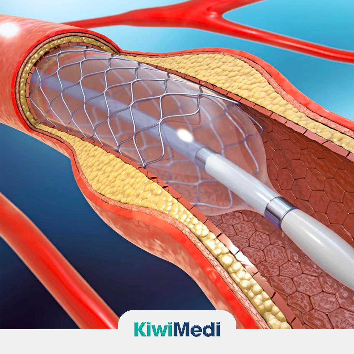 Anjiyoplasti (Stent) İşleminin Riskleri ve Komplikasyonları