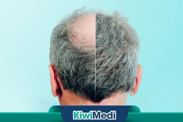 Türkiye'deki En İyi Saç Ekim Kliniği